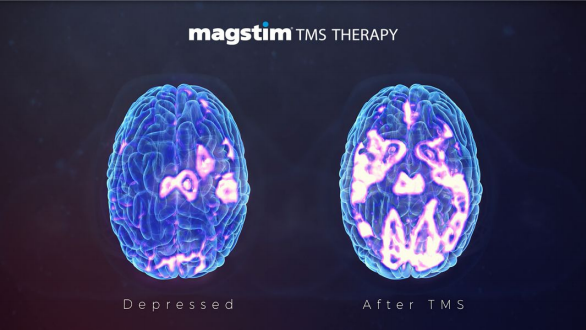 Scan of brain showing before and after TMS treatment.